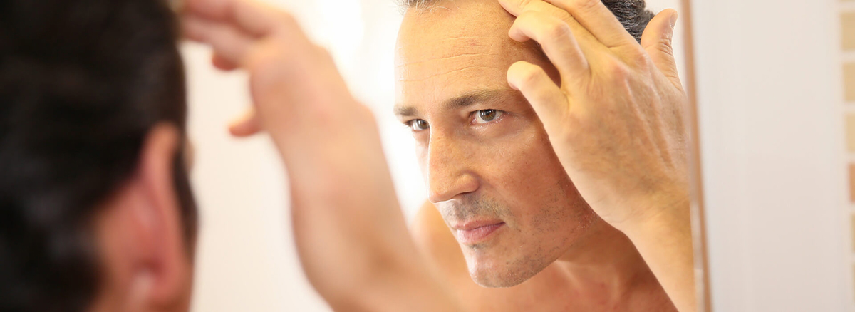 How to do hair transplantation