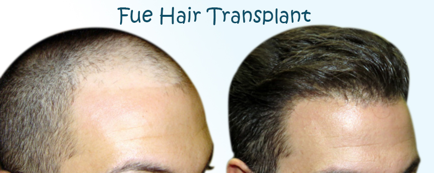 Hair Trans plantationby FUE Methodand Prices