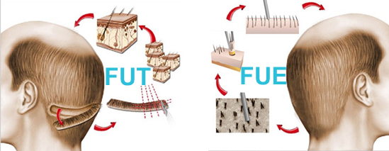 Hair Transplantation Methods