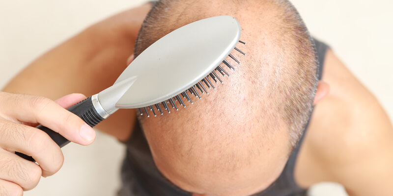 Hair Loss andTreatment Methods