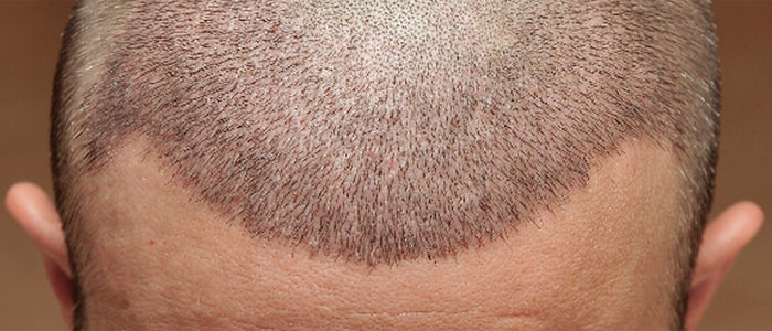 After Hair Transplantation