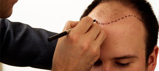 Hair Transplantation Prices